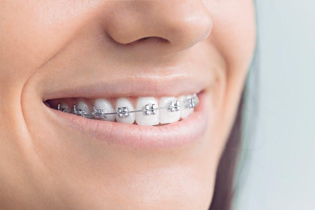 Fixed Appliances Westchester Family Orthodontics